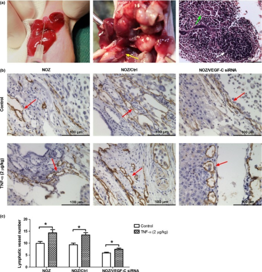 Tumor necrosis factor-α (TNF-α) promoted lymphangiogenesis in the orthotopic xenograft model of gallbladder carcinoma (GBC). (a) Three groups of orthotopic xenograft model of gallbladder carcinoma were separately established using three NOZ cell lines: NOZ, NOZ/Ctrl and NOZ/Ctrl VEGF-C siRNA (left image). After the treatment with a daily dose of TNF-α (2 μg/kg) for 2 weeks, the tumors were excised. As shown in the middle image, the tumor of the orthotopic xenograft model demonstrated invasive growth with liver and LN metastasis (yellow arrow), In the right image of H-E staining of LN, lymphoid follicle (white arrow) and invasive tumor cells (green arrow) could be observed. (b). Lymphatic vessels (marked by LYVE-1) of the orthotopic xenograft tumors were detected by immunohistochemistry. The brown tubular structures (indicated by red arrows) were lymphatic vessels. (c). Lymphatic vessel number of the orthotopic xenograft tumors. TNF-α increased the lymphatic vessels number of NOZ and NOZ/Ctrl group, while the knockdown of VEGF-C decreased this effect. (*P < 0.05).