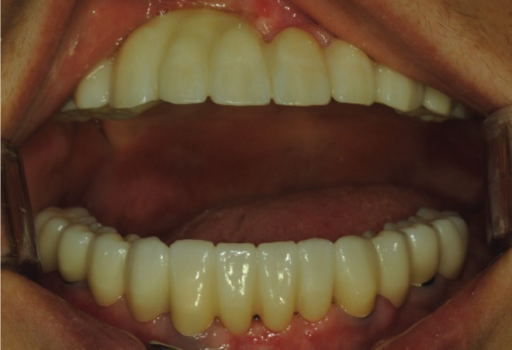Photograph shows performing full mouth rehabilitation 4 months after surgery.
