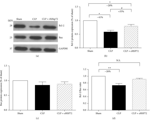 Effects of rhHsp72 on Bcl-2 and Bax expression in livers of rats with sepsis. Experiments were conducted as described in Section 2. Panel (a) is the Western blots showing the expression levels of Bcl-2, Bax, and GAPDH. Panels (b) and (c) present the intensity of the signals of Bcl-2 and Bax quantified using densitometry after normalization with that of GAPDH. Panel (d) represents the Bcl-2/Bax ratio. Values are mean ± standard error of the mean. Each group contained 12 animals. ∗p < 0.05, ∗∗p < 0.01 and N.S. versus sham; #p < 0.05; versus CLP.