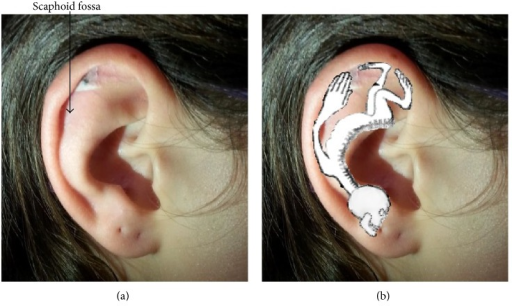 Location of Vaccaria seed on the surface of subject's earlobe (a). Somatotopic map of the ear showing the correspondence of fingers and fingertips with the stimulated acupoint (b).