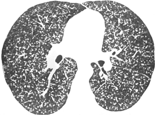 Small nodules evenly distributed throughout the lungs, no particular lung compartment being predominantly affected. Note that some of the nodules touch the pleural surface, whereas others are in contact with the fissures.