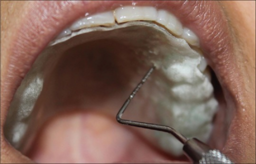 Clinical measurement of maxillary first premolar 2mm from the gingival margin
