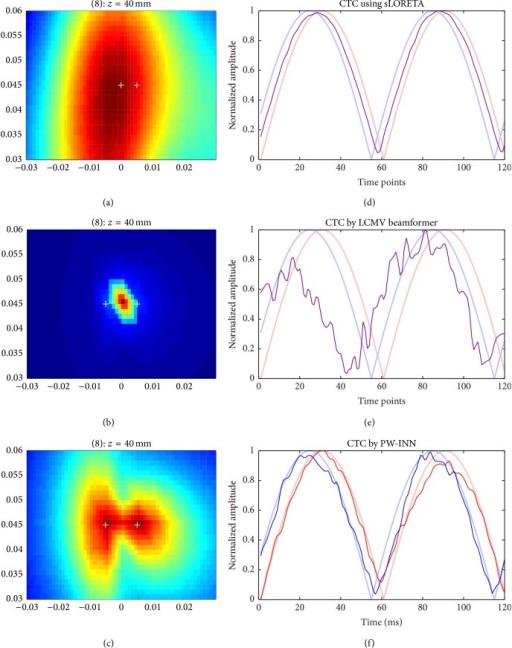 Source reconstruction using sLORETA, LCMV beamformer, a | Open-i
