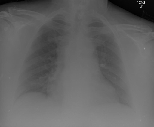 PA and Lateral Chest Radiograph XXXX, XXXX at XXXX a.m.
