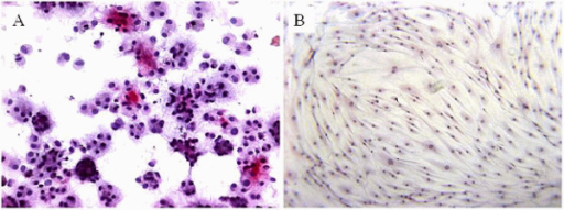 Immunohistochemical staining for collagen type 2 on tendon-derived fibroblasts. 5% of the cells cultured for 21 days in alginate beads in chondrogenic medium stained positive (A). Cells cultured in monolayer in control medium remained negative (B) as did cells in adipogenic or osteogenic media (figures not shown).