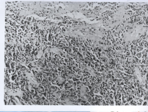Photomicrograph showing sheets of round and spindled cells (H&E ×230)
