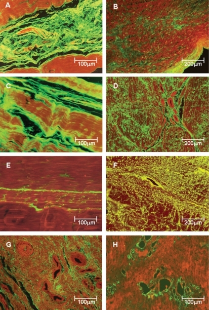 Type I, III and V collagenous fibers in tendon controls (panels A, C and E) and posterior tibial tendon dysfunction (PTTD) patients (panels B, D, F, G and H) labeled with fluorescein and observed under a fluorescent microscope. Control tendons show parallel orientation of type I (A) and III (C) collagen and strong green fluorescence and a finely reticulated type V collagen (E) network in the interstitium and basement membranes of vessels, coincident with the maintenance of the architecture of the tendons. In contrast, PTTD shows distorted architecture and a diffuse increase of birefringence for all three types of collagen. Type I collagen birefringence is discrete and diffusely distributed in pathologic tendons (B). Type III has the same distribution found for type I but is more prominent and thus defines the fibrosis process installation (D). Type V collagen was mostly found in the vessel walls and around them, resulting in a finely reticulated network (F) when compared to type III fibers. In panels G and H, the strong birefringence of type III and V collagen in the periadvential areas with more vascular density are shown Original magnification X 100 in panels B, D and F; X200 in panels A, C, E, G and H)
