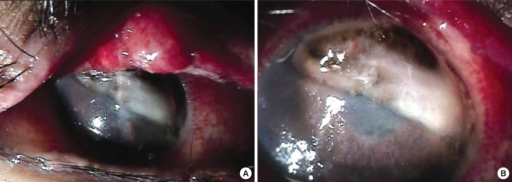 Slit lamp photographs in a 17-yr-old female patient receiving systemic chemotherapy for acute lymphocytic leukemia. (A) Marked congestion and inflammation of the upper tarsal conjunctiva and a melting lesion with sharp demarcation observed in the upper part of the cornea. (B) The iris was prolapsed at the perforated site.