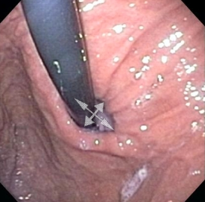 Retroflex view of gastroesophageal junction. Transverse dimensions of hiatus are marked with crossing arrows