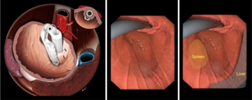 External relations of aorta, vena cava, liver, and spleen from a standard endoscopic view