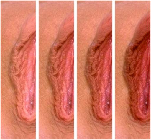 Покраснение внутри клитора белые выделения