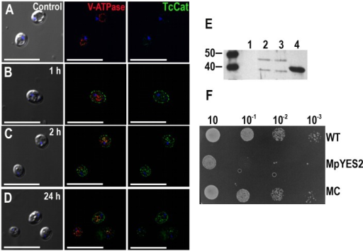Functional yeast complementation with TcCat.A–D. TcCat expression, as analyzed by immunofluorescence, at different times after induction. Yeast were collected at the indicated times and incubated with anti-TcCat antibodies (green) and anti-vacuolar H+ ATPase (red) as a control for proper permeabilization. Nuclei were DAPI stained (blue). Left panels are DIC images, right panels are anti-TcCat stained cells and central panels are merge immunofluorescence images. Bars = 10 µm. E. Western blot analysis of yeast homogenate with specific anti-TcCat antibody. Lanes, 1: control non-complemented mutant yeast, 2: wild-type strain complemented with TcCat, 3: mutant strain complemented with TcCat, 4: TcCat recombinant protein. F. Growth-assay of complemented yeast in SC ura- galactose agar plates. Serial dilutions of initial cultures at OD600 = 0.6 were incubated for 72 h at 30°C. WT corresponds to wild type strain, MpYES2 is the mutant transformed with the empty vector pYES2, MC represents the mutant strain transformed with TcCat-pYES2 construct.