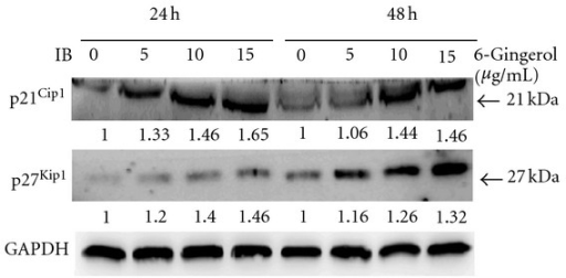 Effects of 6-gingerol on p21Cip1 and p27Kip1 of LoVo cells. Cells were treated with indicated concentration of 6-gingerol for 24 h or 48 h, and then the cell lysates were subjected to immunoblot for detection of p21Cip1 and p27Kip1. Protein levels were relatively quantitated by densitometric analysis using GAPDH as control.