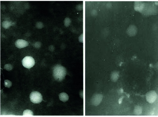 Two distinct Electron Microscopy Images Showed Many Icosahedral Adenoviral Particles as Single or Cluster Forms with Hardly Visible Fiber Projections Surrounded by Some Defective Particles