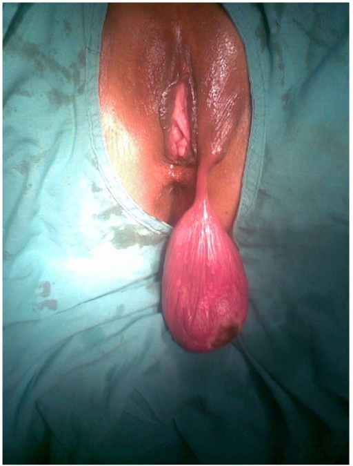 labia library shows that vaginas normal