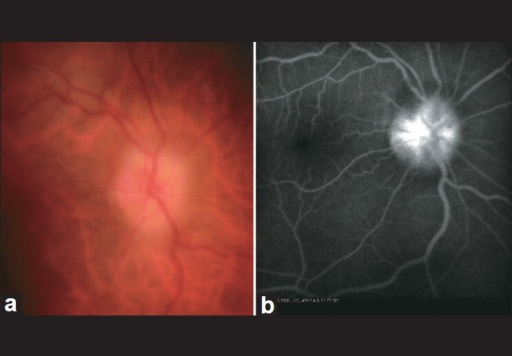(a) Fundus photography shows nonarteritic ischemic optic neuropathy; (b) fluorescein angiography shows hyperfluorescence of the optic disc
