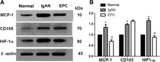 Protein expression of MCP-1, CD105 and HIF-1α after transplantation. Representative immunoblots (A) and quantitative densitometry analysis (B, from 5 experiments) demonstrating protein expression of MCP-1, CD105 and HIF-1α, in the renal cortex of rats from normal, IgAN and EPCs groups.*P < 0. 05 vs normal,#P < 0.05 vs IgAN.