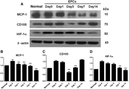 Protein expression of MCP-1, CD105 and HIF-1α during transplantation. Representative immunoblots (A) and quantitative densitometry analysis (B, C, D) for protein expression of MCP-1, CD105 and HIF-1α, in the renal cortex of rats from normal, day-0, day −1, day-3, day-7 and day14 EPCs rats after transplantation. *P < 0.05, **P < 0.01, comparing to the day-0 group.
