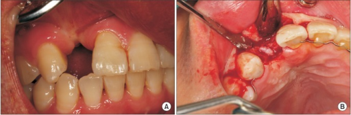 Clinical view before implant placement. A. Preoperative intraoral photograph. B. Mucoperiosteal flap was elevated. Narrow alveolar ridge is observed.