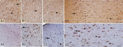 Caspase-3 (A1–D1) and caspase-9 (A2–D2) immunoreactivities in the ischemic brain tissue at 6 and 24 hours after syringaldehyde treatment.The representative example of immunohistochemical images in ischemia group (A1–A2), ischemia + SA6 group (B1, B2), ischemia + SA24 group (C1, C2) and control group (D1, D2). Immunoreactivity for caspase-3 and -9 in neurons (arrows) and perinuclear areas (arrowheads) are shown. Vacuolization (v) is shown. Caspase-3 and -9 immunoreactivities decreased in the ischemia + SA6 and ischemia + SA24 groups compared to the ischemia group. Scale bars: 20 μm. SA6: 6 hours after syringaldehyde administration; SA24: 24 hours after syringaldehyde administration.