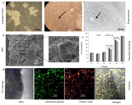 Proliferation potential of hADSCs on chitosan hydrogel.a) hADSCs cultured on chitosan hydrogel on different days. Magnification 200X. b) SEM imaging revealed uniform distribution of hADSCs on the hydrogel. Further, the cells were growing in close association with the hydrogel. c) The mean ± SD values for PDT were low when cells were grown on a hydrogel matrix. There was a significant difference in growth rates of the hADSCs on the hydrogel matrix at P <0.05 (n = 3). d) JC-1 staining showed JC-1 dimer formation within the stem cell network, thereby indicating the presence of metabolically active live cells on the hydrogel using CLSM. The JC-1 staining of cells differentiate dead from viable intact cells by their mitochondrial membrane integrity. The negative charge established by the intact mitochondrial membrane potential allows the lipophilic dye, to enter the mitochondrial matrix where it accumulates. When the critical concentration is exceeded, J-aggregates form, which appear as fluorescent orange. In non-viable cells, the mitochondrial membrane potential collapses, and the JC-1 cannot accumulate within the mitochondria. The bright field image shows actively growing stem cells present in the hydrogel (n = 3).