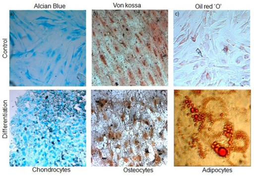 Differentiation potential of hADSCs cultured on a chitosan-based matrix.a) Alcian blue staining of acid mucopolysaccharide aggregates present in the differentiatedchondrocyte cultures grown on chitosan hydrogel. b) Calcium deposits in the ECM were stained using Von kossa staining of the differentiated osteocytes on the hydrogel matrix.c) Lipid droplets were formed on cells laden on matrix after adipogenic induction and werestained with oil red O staining. Negative staining of un-induced cultures for the respectivelineages is also shown. Magnification, 400X (n = 5).