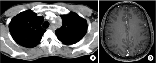 Radiographic images before treatment. (A) Chest computed tomography scan shows an infiltrative mass to the proximal vessel and aortic arch in the left upper mediastinum measured 4.1×3.1×5.4 cm, encircling the left common carotid artery and left subclavian artery. (B) Brain magnetic resonance imaging with contrast revealed focal enhancing lesion in the left frontal lobe suggesting metastasis.