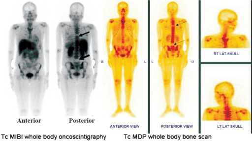 Whole body MIBI oncoscintigraphy and 99mTc MDP whole body skeletal scintigraphy showed cold defects in D6 and L4 vertebral bodies confirming scintigraphic diagnosis of bone infarcts.