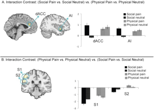 Interaction of reliving social pain vs. social neutral, relative to reliving physical pain vs. physical neutral.