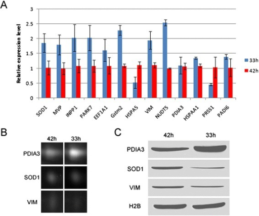 2D DIGE data validation. Though PCR results of 13 genes were inconsistent with the 2D DIGE results (a), the protein expression of 3 randomly selected genes (PDIA3, SOD1 and VIM) checked by Western blot (c) were in agreement with the gray values of these spots in the 2D DIGE (b). Histone H2B served as loading control