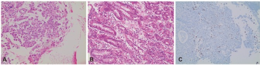 Histological and immunohistochemical staining results. The histologic results of the esophageal and gastric metastatic lesions (A, H&E stain, ×200) and right lower paratracheal lymph node (4R) lesions (B, H&E stain, ×100) all showed adenocarcinomas. The immunohistochemical staining of the stomach lesions was positive for thyroid transcriptional factor-1 (C, ×100).
