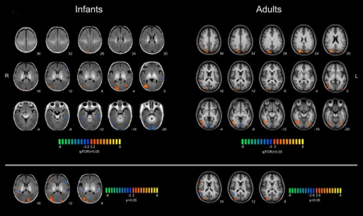 "Multi-subject GLM analysis for coherent versus random flow motion stimuli.Results of a multi-subject fixed-effect general linear model (FFX-GLM) analysis for the BOLD response to coherent versus random flow motion performed on the group of 11 infants and registered on the infant brain template on left panels and on 9 adults in the right panels. Colour bar represents the statistical t-values, with thresholds corresponding to a q(FDR) < 0.05 in the top panels and to p < 0.05 uncorrected in the bottom panels. Numbers refer to the ""ζ"" coordinate of the transversal slice for the infants and to the Talairach z for the adults. R-L in radiological convention. (R: right; L: left; FDR: false discovery rate.) Data of the statistical maps are available in S2 Data."