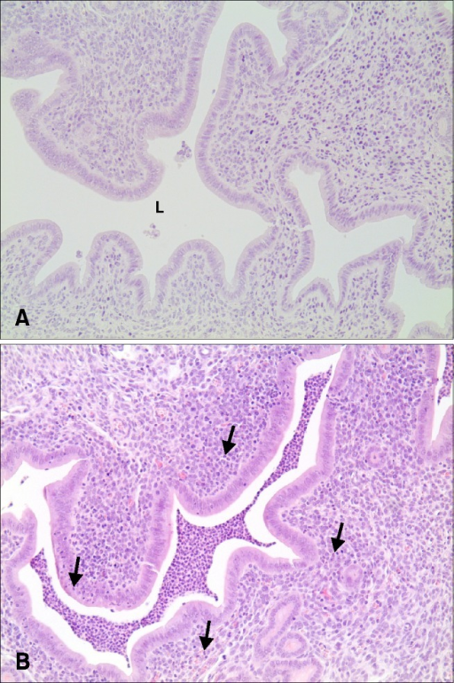 The representative histopathological findings of the uterus with saline only (A) and co-administration of HCl and LPS (B). (B) Mice were administered i.c. with HCl (25 mg/kg. 1 N) followed by four applications of LPS (50 mg/kg) every 2 h. Note the neutrophils in the lumen, in the endometrium and in the surface epithelial layer (arrows). No inflammation was observed in (A). L, lumen. H&E stain. 200×.