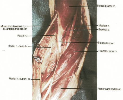 Biceps Brachii Muscle Median Nerve Brachial Artery M Open I