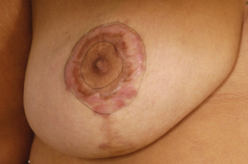 Photograph of right breast keloid scarring following bilateral breast reduction.