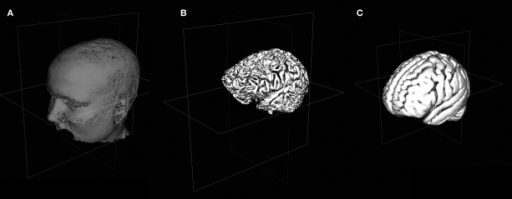 Viewing 3D Surfaces in DV3D. (A) Example of a rough estimate of a scalp using the surface extraction technique. (B) Example of arough estimate of a cortex using the same technique. Here the data set has been skull stripped first using FSL's Brain Extraction Tool. (C) A rough cortical extraction of the 1 × 1 × 1 mm3 MNI brain distributed with FSL 4.0.