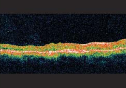 At presentation, optical coherence tomography reveals increased retinal thickening overlying the SRNVM with subretinal fluid (SRF)
