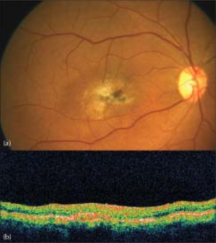 Color fundus picture (a) at the last follow-up reveals a completely regressed SRNVM. Optical coherence tomography (b) shows a high-reflective, scarred subretinal membrane