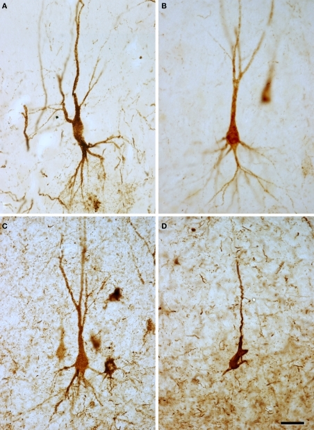 High-power microphotographs to illustrate the morphological appearance of PHF-tau-ir neurons. (A) Pyramidal neuron from the CA1 field of control case C2. (B,C) Pyramidal neurons from the CA2 field of patients P4 and P3, respectively. (D) Pyramidal neuron from the entorhinal cortex of patient P1. (A–C) Correspond to pattern I of PHF-tau staining, which is characterized by a diffuse cytoplasmic staining and the neurons display a normal morphology. (D) Correspond to pattern II of PHF-tau staining, which is characterized by the presence of NFT. These neurons appear to have fewer processes probably due to neuronal atrophy. Scale bar: 37.5 μm.