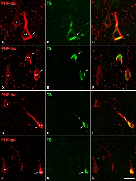 Confocal microscopy of sections double stained with an anti-PHF-tau antibody (red) and Thioflavine-S (TS, green), which labels PHF-tau forming NFT. (A,B), (D,E), (G,H), and (J,K) pairs of confocal images from the same section and field in the CA1 hippocampal region of AD patient P1, P7, P4, and P3, respectively. Panels (C,F,I,L) were obtained by combining these images (A) and (B), (D) and (E), (G) and (H), (J) and (K), respectively. Note that type I PHF-tau-ir neurons (one asterisk) were free of NFT, whereas type II neurons (two asterisks) contained NFT (arrows). Scale bar: (A–C), 21 μm; (D–F), 24 μm; (G–L), 31.5 μm.