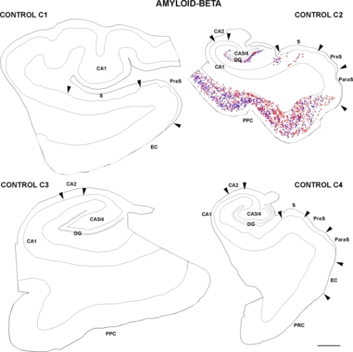 Drawings based on Neurolucida plots made with a 40× objective showing the distribution of diffuse, cored neuritic, and non-cored neuritic plaques (red, green, and blue circles, respectively; see Garcia-Marin et al., 2009) in the hippocampal formation and adjacent cortex from control cases. Borders between the different cortical cytoarchitectonic regions are indicated by arrowheads. Abbreviations as in Figure 5. Scale bar: 1,000 μm.