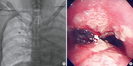 A bronchial stent was placed in the left main bronchus. (A) A fluoroscopic image shows the bronchial stent and a totally collapsed left lung. (B) Bronchoscopy performed just after the bronchial stent placement shows the proximal end of the stent, which was exactly positioned at the orifice of the left main bronchus.