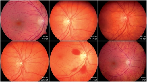 Fundus photographs of a climber from group 1 showing the development of retinal hemorrhages during the course of her climb.Note the white-centered hemorrhage localized at the temporal inferior branch of the retinal artery.