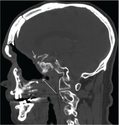 Radiation necrosis of the skull base with fistulous tract: Sagittal contrast-enhanced CT of the mandible bone (bone window) shows irregularity of the skull base (small arrow). In addition, there is a fistulous tract extending towards the oral cavity (large arrow).