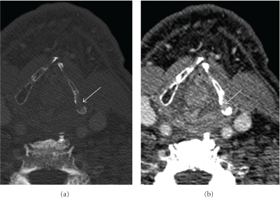 Chondronecrosis of the thyroid cartilage: (a) Axial contrast-enhanced CT of the thyroid cartilage (bone window) shows destruction of the left side of the cartilage (arrow). (b) Axial contrast-enhanced CT (soft tissue window) shows no evidence of an adjacent enhancing soft tissue mass (arrow).