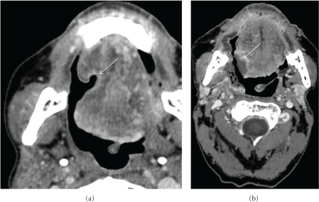 Benign and malignant soft tissue ulceration: (a) Axial contrast-enhanced CT of the oral cavity (soft tissue window) shows a benign ulceration (arrow) without an associated soft tissue mass. (b) Axial contrast-enhanced CT (soft tissue window) shows recurrent tumor characterized by irregular enhancement along the floor of the ulceration (arrows).