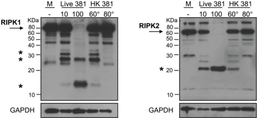 P. gingivalis-induced proteolysis of RIPK proteins is dose-dependent and heat labile.HAEC were treated with medium (M), live P. gingivalis strain 381 (MOI 10) (10), live P. gingivalis (MOI 100) (100), heat-killed (HK) (60°C, 60 min) P. gingivalis 381 (MOI 100 equivalency) (60°), or with HK (80°C, 20 min) P. gingivalis 381 (MOI 100 equivalency) (80°) for 2 h. Whole cell lysates were analyzed for the detection of RIPK1 (left panel) or RIPK2 (right panel). Full-length RIPK1 and RIPK2 are indicated with arrows. Prominent P. gingivalis-induced LMW bands are indicated with asterisk(s). MW ladder is indicated on the left in kDa. GAPDH was detected as a loading control.