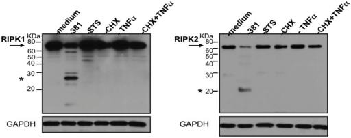 Classical apoptotic stimuli do not induce the proteolysis of RIPK1 or RIPK2 in HUVEC.HUVEC were treated with medium, P. gingivalis 381 (MOI 100), 2 µM staurosporine (STS) 25 µg/ml cycloheximide (CHX), 10 ng/ml TNFα, or co-treated with 25 µg/ml CHX and 10 ng/ml TNFα for 6 h. Whole cell lysates were analyzed for the detection of RIPK1 (left panel) or RIPK2 (right panel). Full-length RIPK1 and RIPK2 are indicated with arrows. Prominent P. gingivalis-induced LMW bands are indicated with asterisks. MW ladder is indicated on the left in kDa. GAPDH was detected as a loading control.