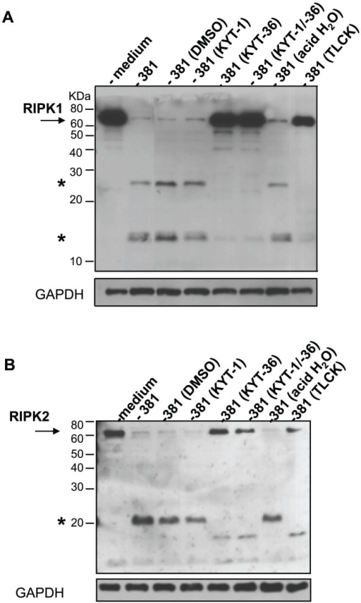Inhibition of Kgp activity alters P. gingivalis-mediated RIPK1 and RIPK2 cleavage in HAEC.P. gingivalis strain 381 was pretreated with 10 µM KYT-1, 10 µM KYT-36, 10 µM KYT-1 and 10 µM KYT-36, 1 mM TLCK, or vehicle controls (DMSO or acid water) for 45 min. HAEC were then immediately co-cultured with medium or with pretreated preparations of P. gingivalis 381 (MOI 100) for 2 h. Whole cell lysates were analyzed for A) RIPK1 or B) RIPK2. Full-length RIPK1 and RIPK2 are indicated with arrows. Prominent P. gingivalis-induced LMW bands are indicated with asterisk(s). MW ladder is indicated on the left in kDa. GAPDH was detected as a loading control.