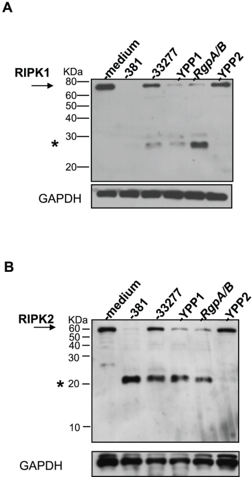P. gingivalis Kgp mutant is deficient in the induction of RIPK1 and RIPK2 proteolysis in HAEC.HAEC were untreated or treated with P. gingivalis strain 381, strain ATCC 33277, or isogenic mutants of 33277: YPP1 (rgpA−), RgpA/B (rgpA−, rgpB−), or with YPP2 (kgp−) (MOI 100) for 2 h. Whole cell lysates were analyzed for A) RIPK1 or B) RIPK2. Full-length RIPK1 and RIPK2 are indicated with arrows. Prominent P. gingivalis-induced LMW bands are indicated with asterisks. MW ladder is indicated on the left in kDa. GAPDH was detected as a loading control.